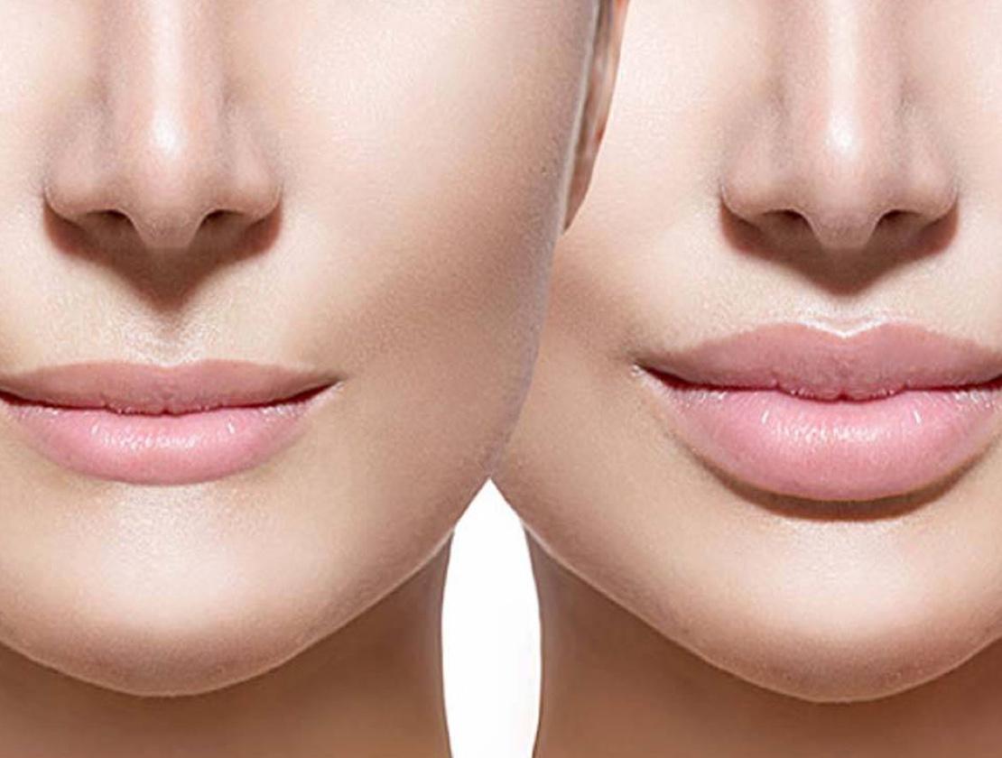 Corectarea ridurilor din jurul gurii
